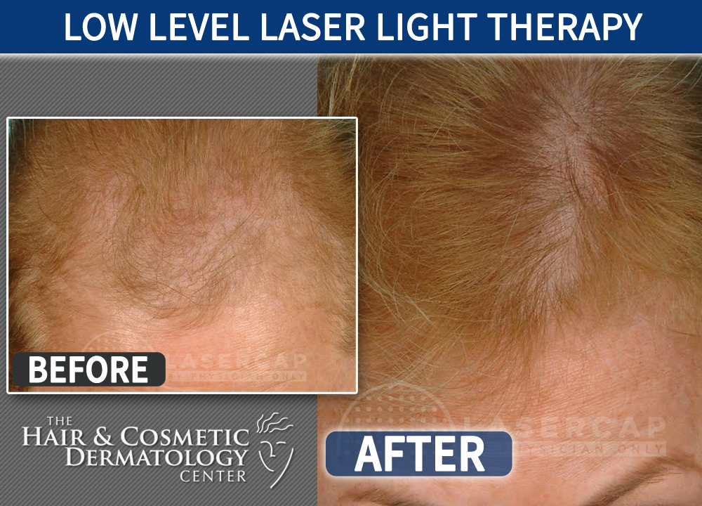 Low Level Laser Light Therapy Laser Cap 2