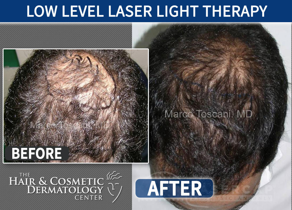 Low Level Laser Light Therapy Laser Cap 3