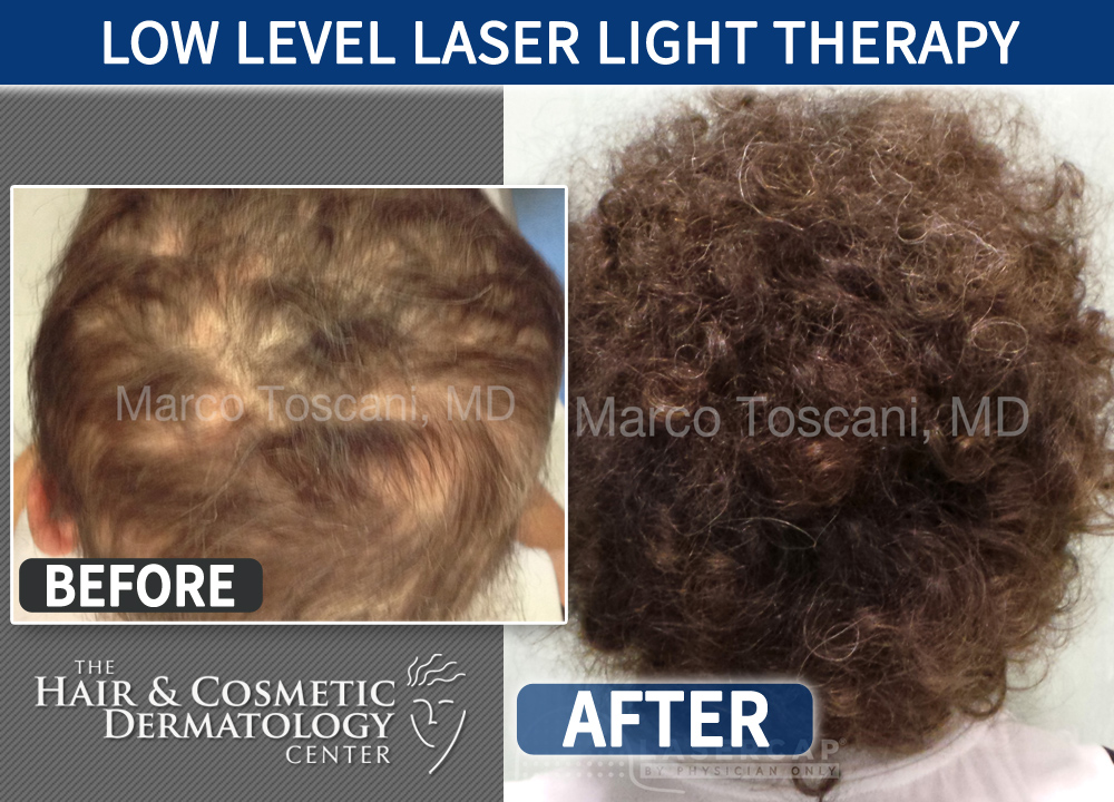 Low Level Laser Light Therapy Laser Cap 4