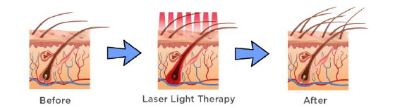How Does LaserCap Work?